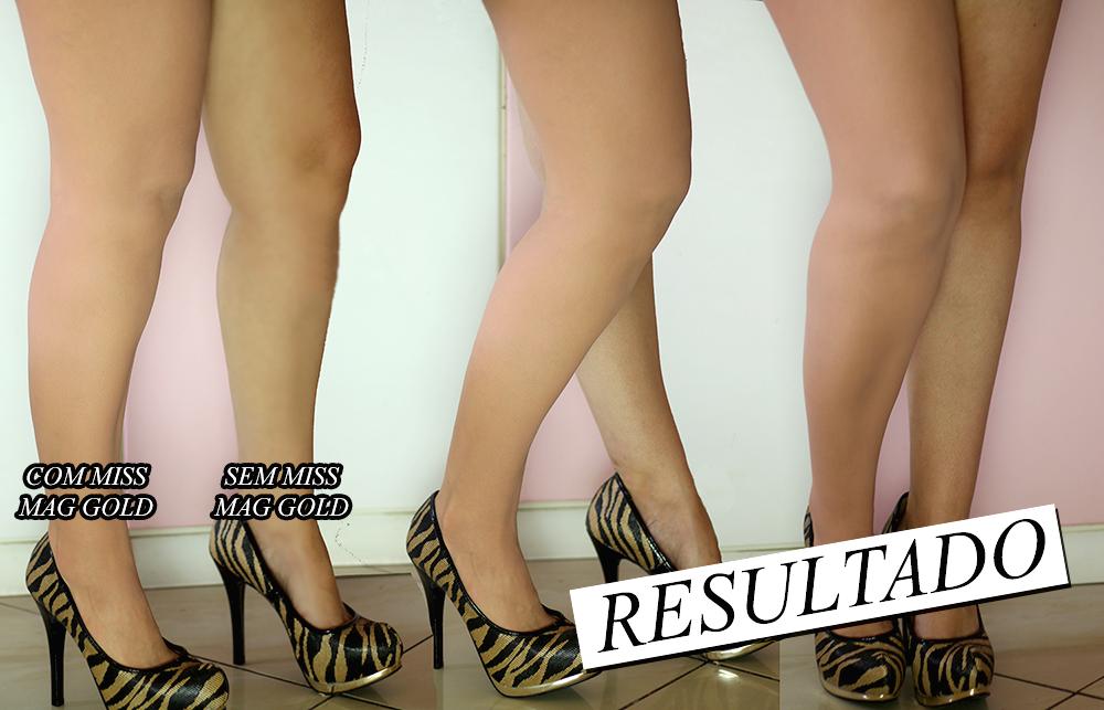 Dica Íntima: Como esconder celulites, estrias e imperfeições – Meia calça Instantânea Miss Mag Gold